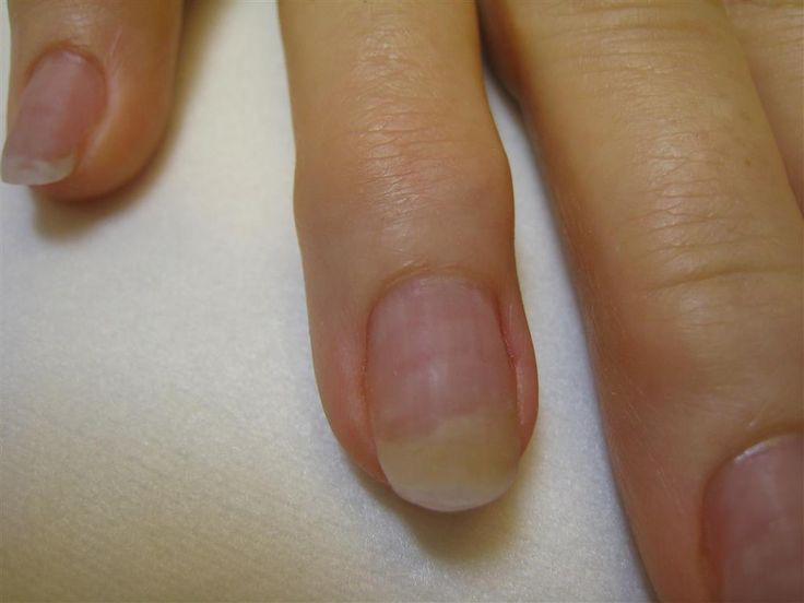 Get rid of your fingernail fungus. Get more information right here.