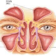 Sinus headaches are usually the result of swollen, inflamed and irritated sinuses. They can be caused by colds, allergies, infections, structural problems in the nasal cavity or an impaired immune system. Symptoms can include yellow or green nasal discharge, pain or pressure in the cheekbones and forehead, tired eyes, sore teeth, sore throat,...