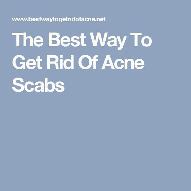 The Best Way To Get Rid Of Acne Scabs