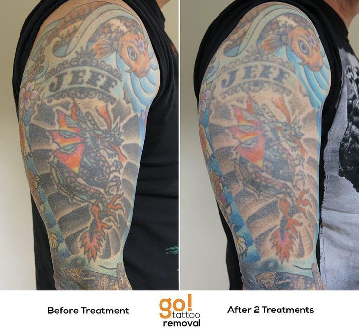 Tattoo Removal Quotes: 17 Best Images About Tattoo Removal In Progress On