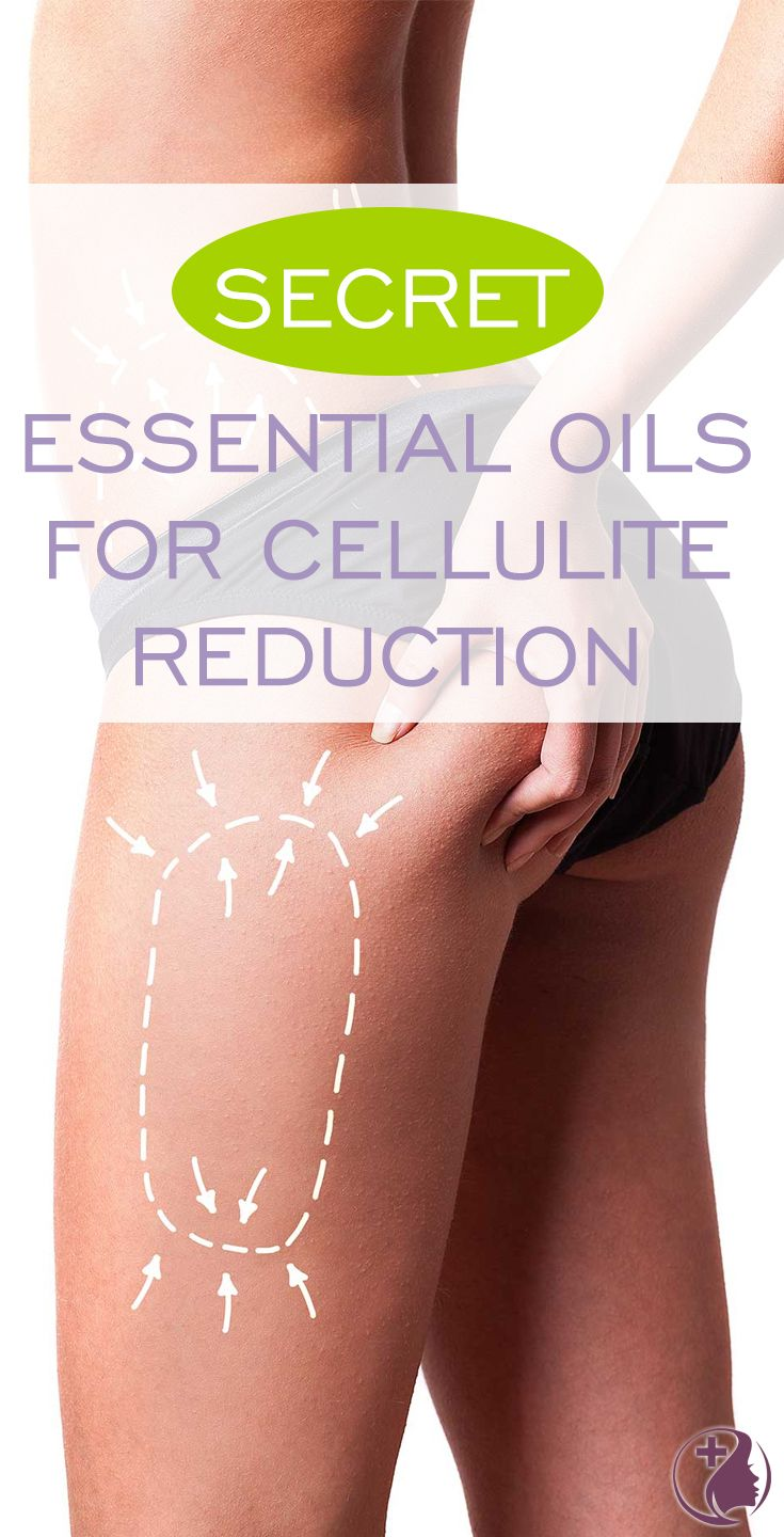 Gross! Cellulite! We all suffer from it and it's not pretty - but did you know with a little time you can diminish cellulite naturally using essential oils?