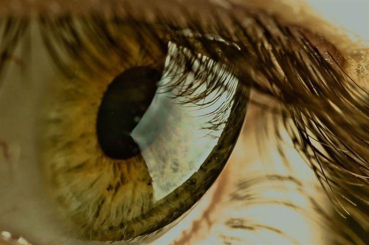 Lentilla, ojo.-Células madre de la pulpa dental pueden transformarse para tratar cicatrices en la cornea