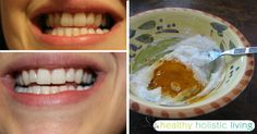At Healthy Holistic Living we search the web for great health content to share with you. This article is shared with permission from our friends at FitLife.tv. By Drew Canole There are few things more attractive than a nice set of pearly whites and a warm smile! Regardless of the shape...More