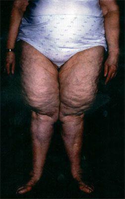 cellulite stiftung warentest, cellulite bekämpfen, cellulite ernährung, cellulite test, cellulite forum, cellulite behandlung, lymphdrainage, cellulite übungen, hautstraffung hausmittel, cellulite wickel, saugwellenmassage
