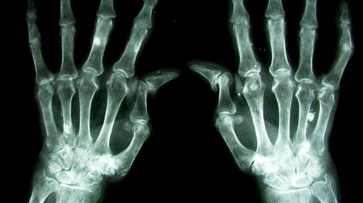 Rheumatoid arthritis  http://www.clinicaltrialsmagazine.com/grappling-with-rheumatoid-arthritis/