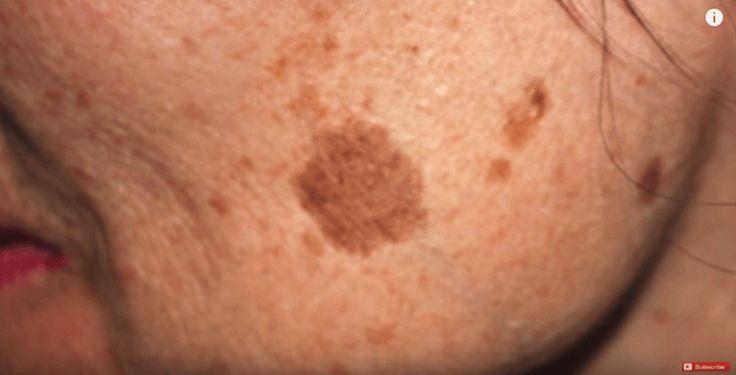 We hebben allemaal bruine vlekken, ook wel ouderdomsvlekken genoemd. Of het nou op je gezicht, benen, armen of schouders zijn, deze vlekken zijn overal op je lichaam te vinden. Naarmate we ouder wo…