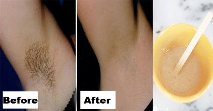 Natural Way To Get Rid Of Underarm Hair