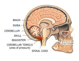 1388 Best Chiari The Brain Amp The Skull Images On