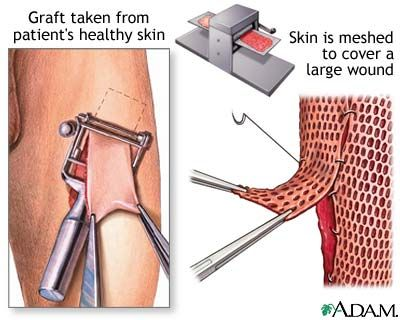 Skin graft-eww!! Now I know why they look like that!!