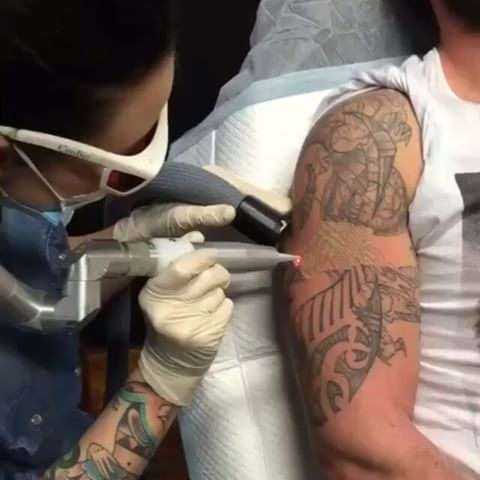 22 Best Tattoo Removal By South West Laser Removal And Mj
