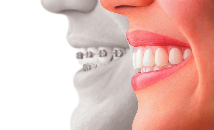 Looking for Affordable Braces in Fort Lauderdale?   Get in touch with a Fort Lauderdale Orthodontics Expert today!
