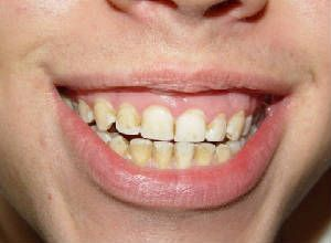 Dica para acabar com os dentes amarelos
