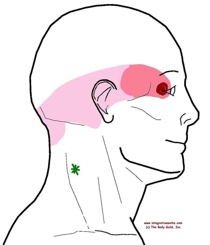 referral - splenius cervicis - C3