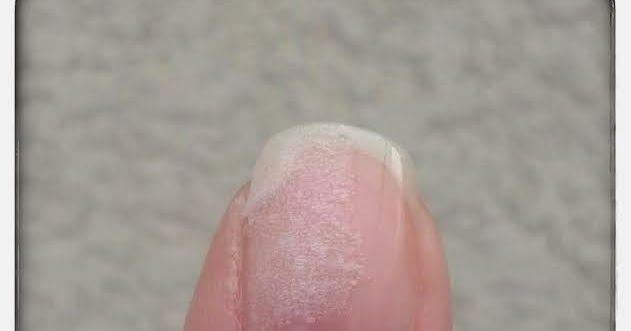 Bonjour les filles, aujourd'hui je vous propose un article qui peut toutes nous servir. Comment réparer un ongle cassé ? Que ce soit po...