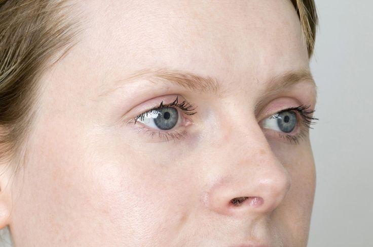 Otthoni gyógymódok a látás javítására | Socialhealth