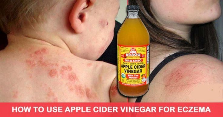 Apple cider vinegar is an excellent home remedy for these things. Here are five ways you can Use Apple Cider Vinegar To Treat Eczema