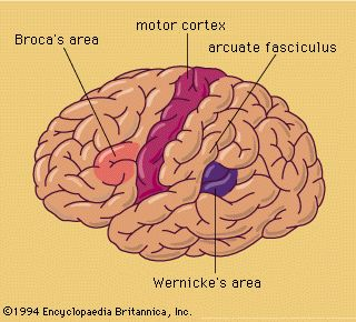 This is a picture as to where the Broca's Area of the brain is located.