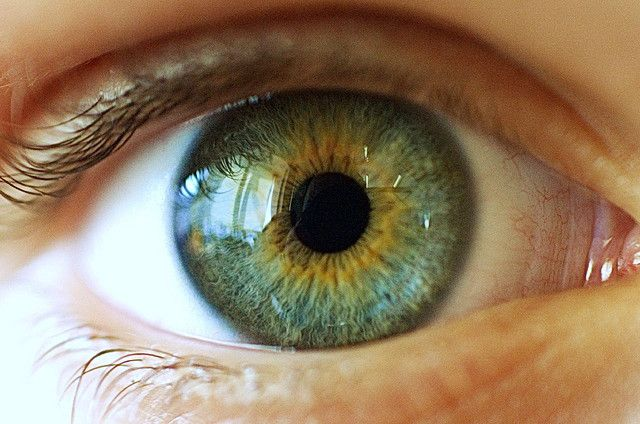 Heterochromia, central . . . green and yellow.