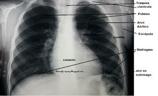 Radiografía de un tórax sano