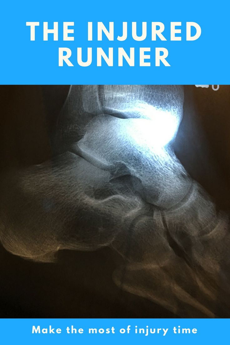 How do you get back to running after an injury? Running doesn't always go to plan. How to make the most of injury time