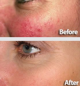 Laser Genesis helps to minimize redness of many causes...along with evening out the tone and texture of your skin.