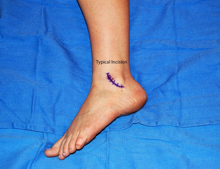 Lateral Ankle Ligament Reconstruction