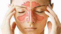 Con este súper remedio podrás curarte de la sinusitis y la rinitis sin tener que llevar un extenso tratamiento médico. La sinusitis es ...