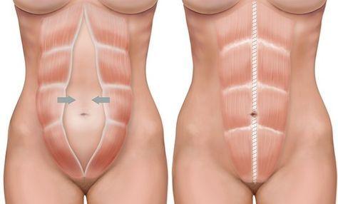 La diástasis puede aparecer después del parto tanto si este ha sido natural como si se ha tenido que realizar una cesárea. La diástasis es la separación de los músculos rectos abdominales, con...