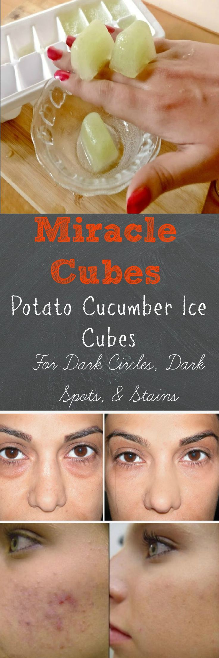 This super easy to make recipe will not only cool irritated skin and get rid of dark circles, but will also remove dark spots, discoloration, and skin stains. The main ingredients in the potato cucumber ice cubes are potato and cucumbers (obviously) which