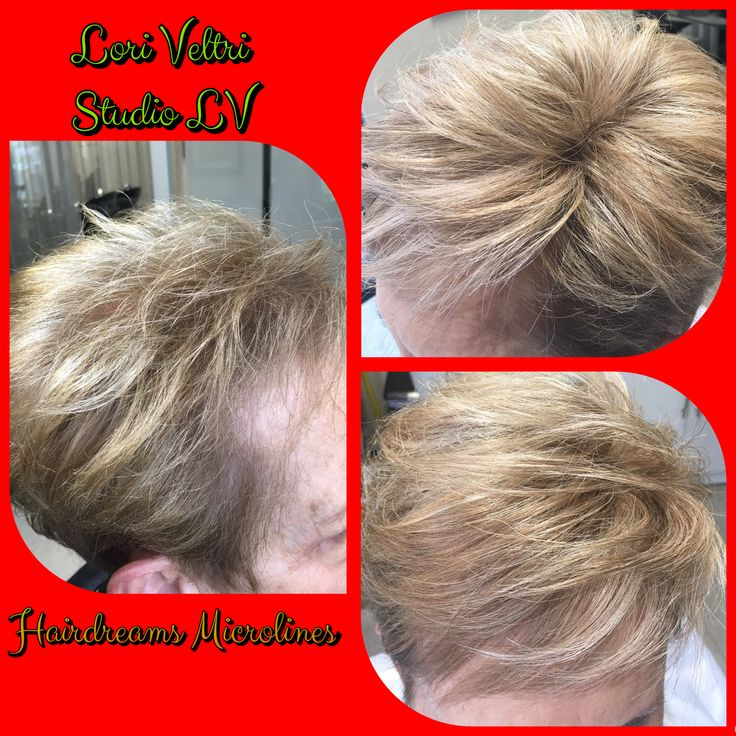 The 22 Best Hairdreams Hair Thickening Images On Pinterest Hair