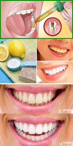 Remedios Caseiros Para Remover Caries E Clarear Os Dentes Em 3