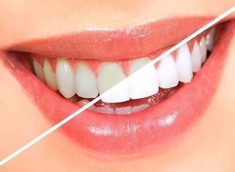 БЕЗВРЕДНОЕ ОТБЕЛИВАНИЕ ЗУБОВ http://pyhtaru.blogspot.com/2017/05/blog-post_4.html Как отбеливать зубы и не нанести им вреда? Рецепт помогает практически при любых заболеваниях десен, и при этом почти моментально отбеливает зубы, растворяет камень, и залечивает маленькие ранки во рту. от пародонтоза, воспаления десен, от черноты у корней зубов, от зубного камня и любого болезненного состояния во рту, а также от плохого запаха изо рта. Читайте еще: ================================= НАПИТКИ ДЛЯ…