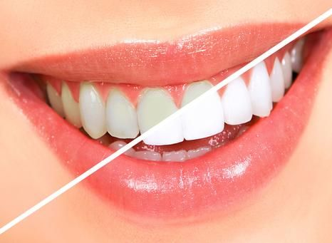 БЕЗВРЕДНОЕ ОТБЕЛИВАНИЕ ЗУБОВ http://pyhtaru.blogspot.com/2017/05/blog-post_4.html  Как отбеливать зубы и не нанести им вреда?  Рецепт помогает практически при любых заболеваниях десен, и при этом почти моментально отбеливает зубы, растворяет камень, и залечивает маленькие ранки во рту. от пародонтоза, воспаления десен, от черноты у корней зубов, от зубного камня и любого болезненного состояния во рту, а также от плохого запаха изо рта.  Читайте еще…