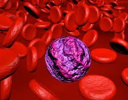 'In leukemia cells it is often the case that genes are reactivated that, in physiological terms, mediate the self-renewal of blood stem cells. In a common subtype of acute myeloid leukemia, this abnormal activation of such self-renewing genes is apparently caused by structural modifications of the DNA packaging.  A targeted drug-based inactivation of the two chromatin regulators will interrupt the self-renewing program, thereby causing leukemia cells to revert to normal blood cells.'
