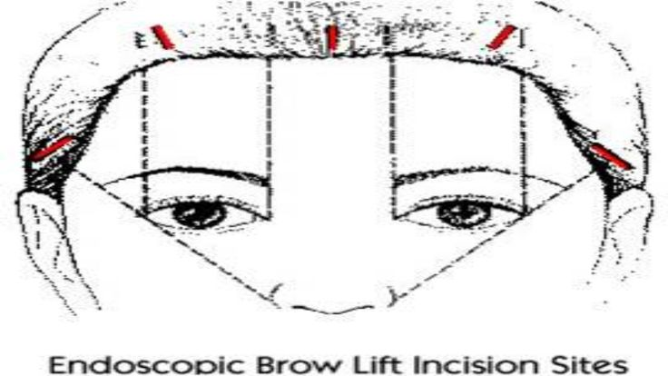 #Eyebrow (forehead) lift repositions low or sagging eyebrows and restores a more youthful, refreshed look to the forehead.   A #forehead lift may also be combined with eyelid surgery (blepharoplasty).