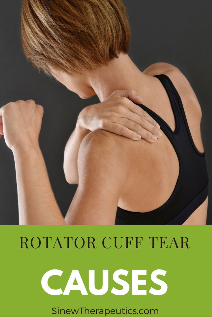 An acute rotator cuff tear is generally the result of one powerful and quick movement or impact. Learn more about a Rotator Cuff Tear at SinewTherapeutics.com