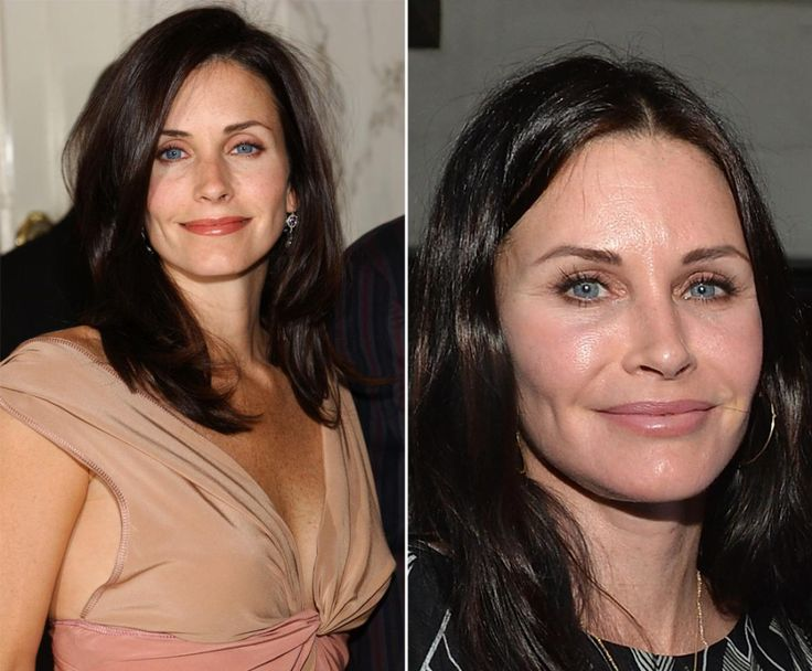 "Courteney Cox spurred on plastic surgery rumors when the ""Friends"" star debuted a frozen-looking face at a book release party for Kevin Morris's ""White Man's Problem"" on June 3, 2014 in Los Angeles (l.). The actress's visage looked a bit more relaxed in days past."