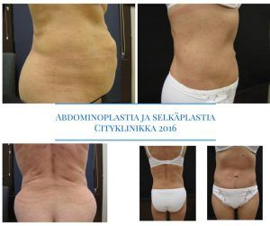 Abdominoplastia alk. 3000 € + alv.