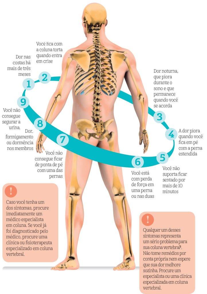 sintomas hernia