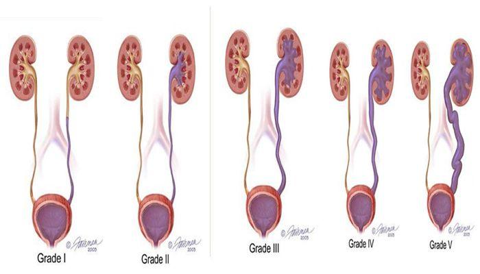 أسباب و أعراض إرتجاع البول وطرق العلاج Measuring Cups Measuring Spoons Utensil