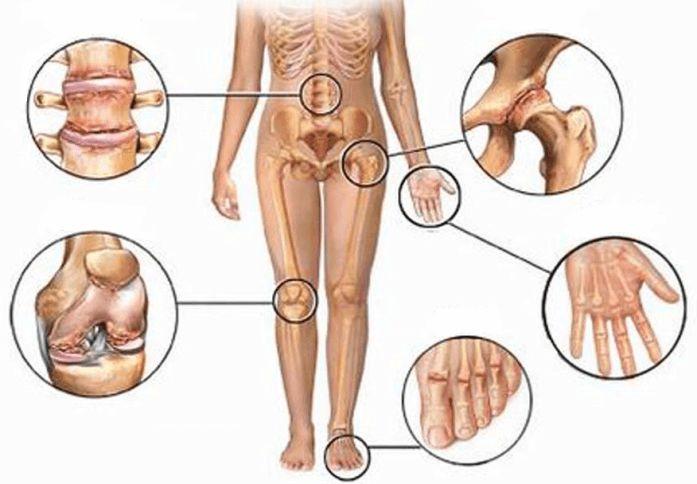 Боль в суставах: 5 натуральных противовоспалительных средств