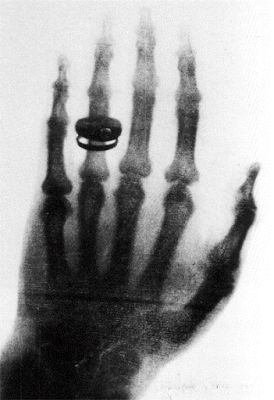 Tecnólogo em Radiologia: Descoberta dos raios X