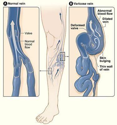 Как заставить «спрятаться» вены на ногах