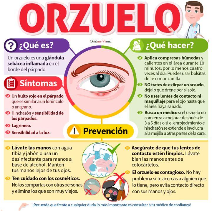 #Orzuelo Qué es Qué hacer http://bit.ly/1m9B2Ww