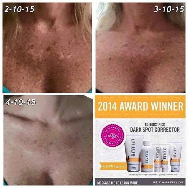 149 Best Images About Rodan Fields Reverse On Pinterest