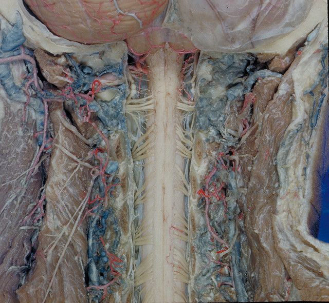 I thought this was a corset! The cervical spinal cord. By removing the rear arches of the neck (cervical) vertebra & the fibrous covering (dura) over the spinal cord one sees the cervical spinal cord & its nerves. The blood vessels nourishing the cord & vertebral column & the origin of the cord from the brain are clearly shown. #POTS Postural Orthostatic Tachycardia Syndrome #Dysautonomia #MrBowerbird