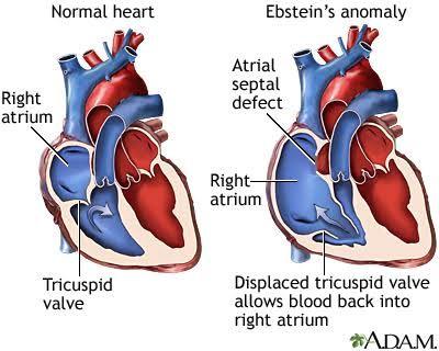 Anomalía de Ebstein - es un desplazamiento inferior de la válvula tricúspide que da una cardiopatía cianosante progresiva, se asocia a CIA y taquiarritmias paroxísticas. Así como disfunción del VD. se puede presentar con hepatomegslia, desdoblamiento del 2o tono, y 3er y 4to ruido presentes.