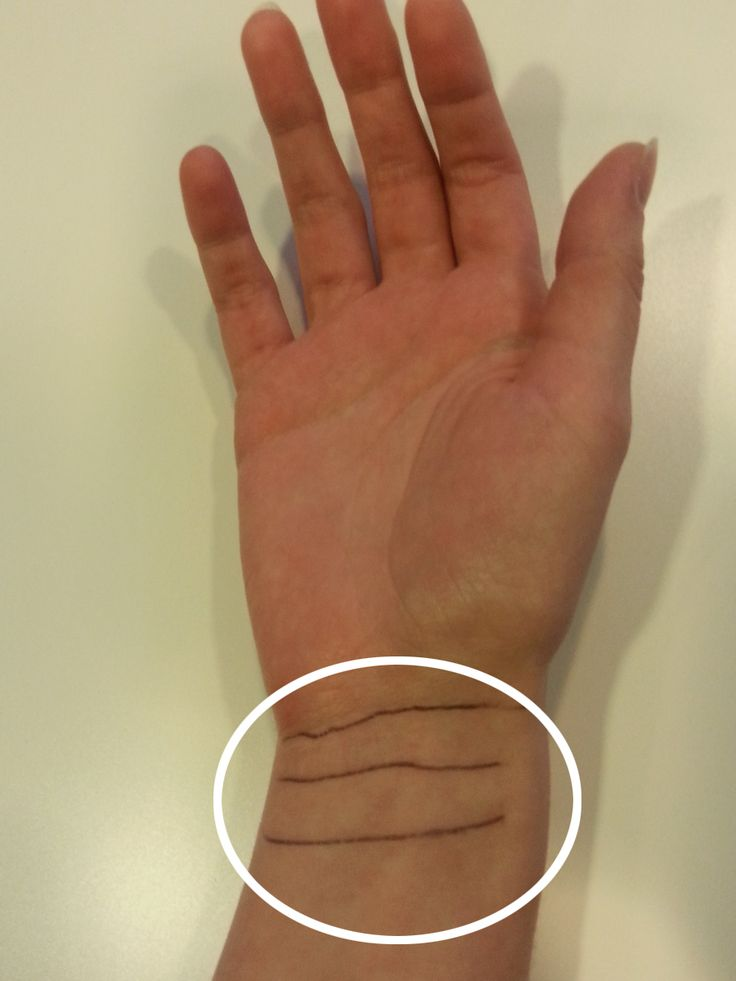 Die sogenannten Raszettlinien befinden sich an deinem Handgelenk, sie ziehen sich wie ein Armband darum herum. Diese Linien zeigen dir
