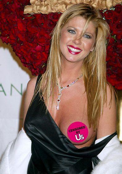 Tara Reid plastic surgery