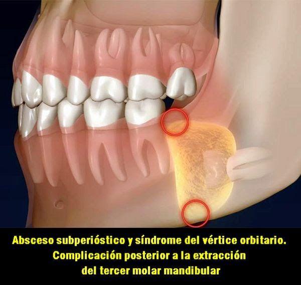 Absceso subperióstico y síndrome del vértice orbitario. Complicación posterior a la extracción del tercer molar mandibular | OVI Dental